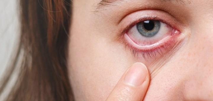 ¿Conseguir lasik hace que sea más fácil contraer infecciones oculares?